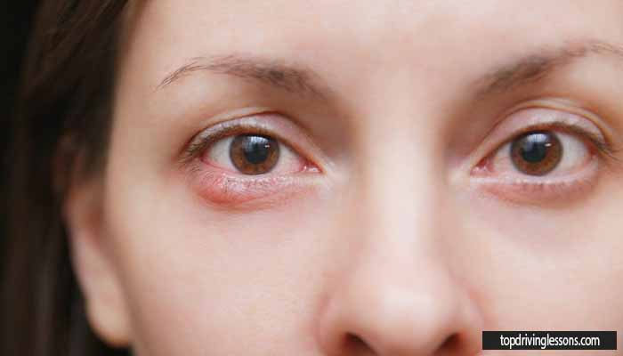 Watch out for blepharitis with red and swollen eyelids