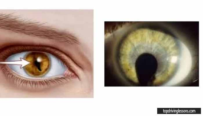 cat-shaped eye disorder or cat eye syndrome